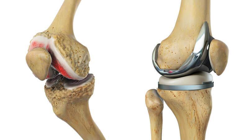 уверен, эндопротезирование коленного сустава отекает нога интересно узнать поподробнее