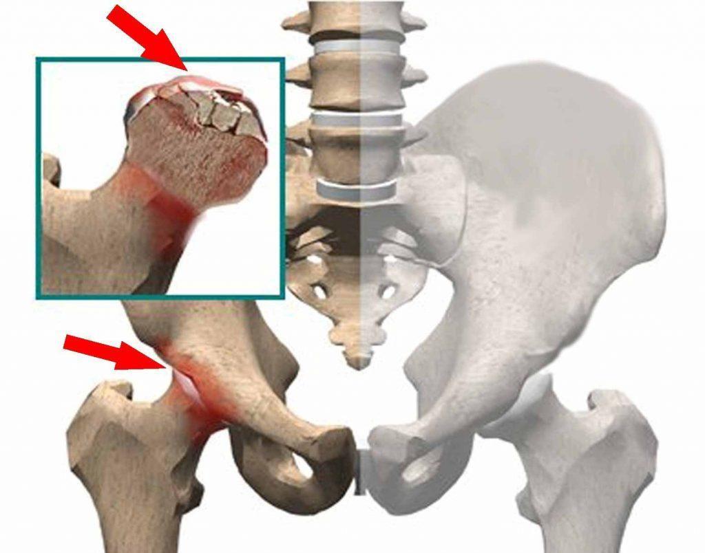 Асептичний некроз голівки стегнової кістки
