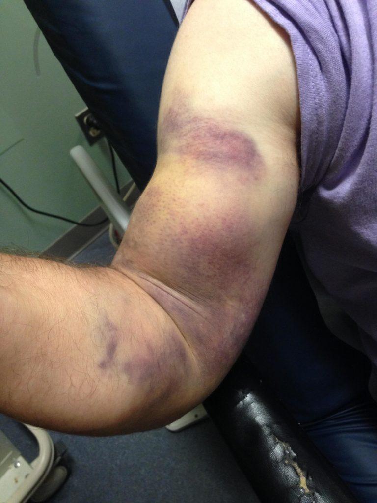 Повреждение сухожилия бицепса операция восстановления Киев