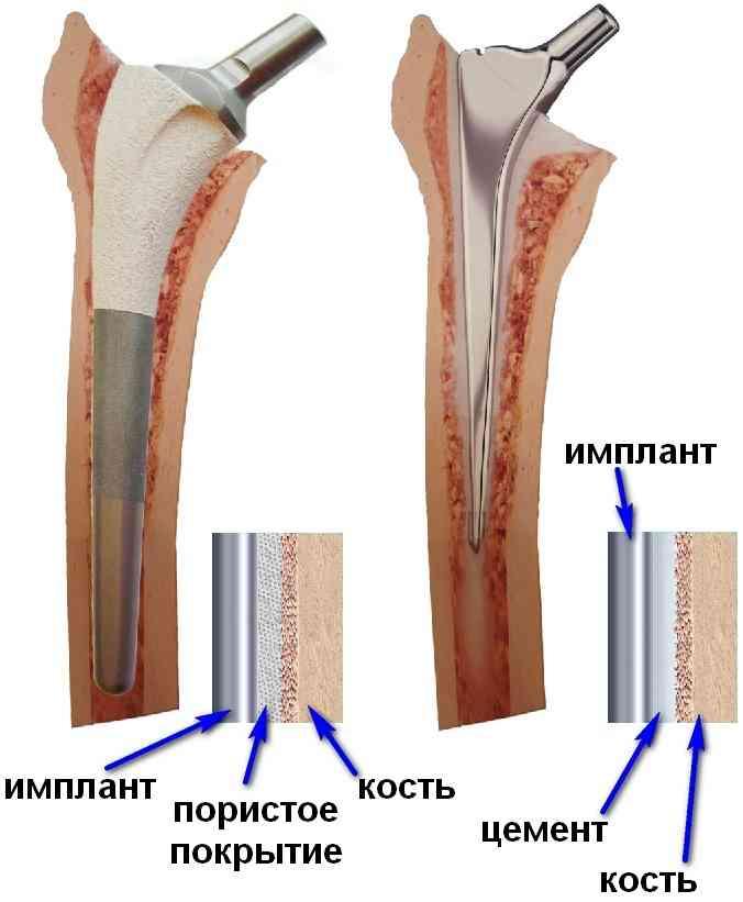 заміна кульшового суглоба у клініці Києва