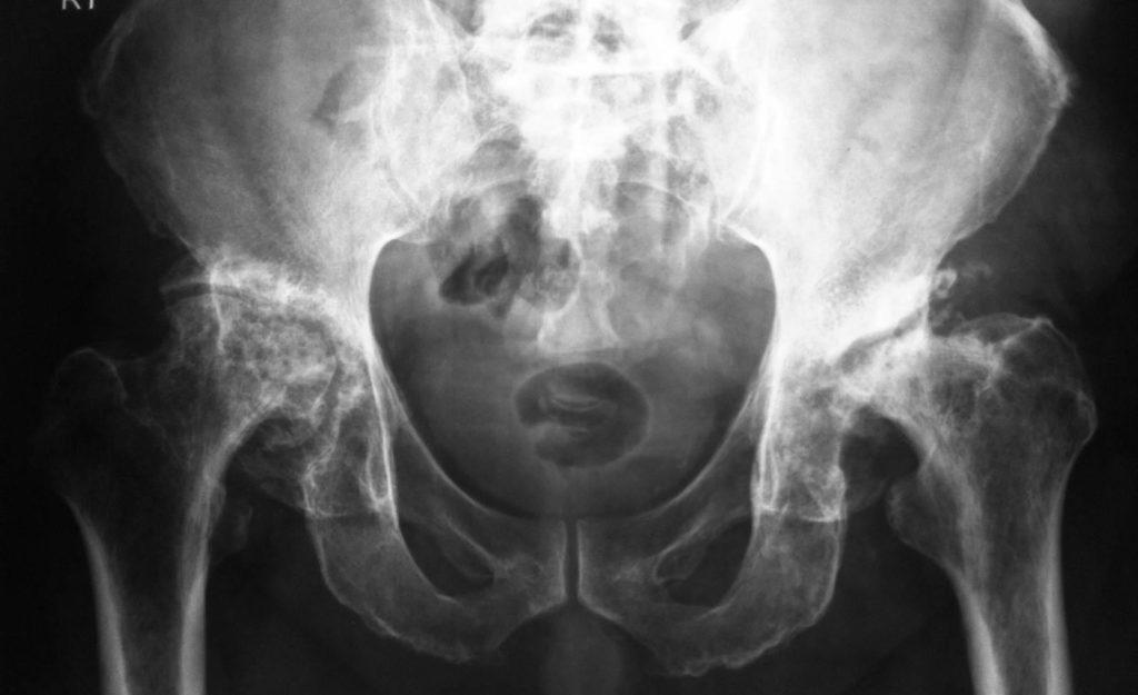 асептический некроз головки бедра