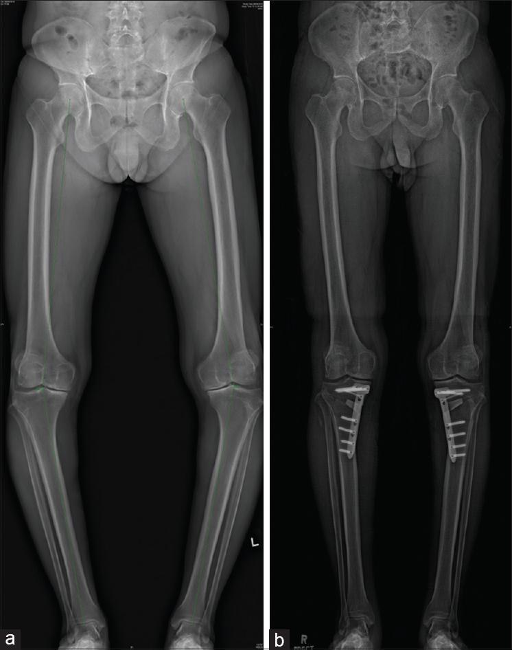 Остеотомия коленного сустава при варус (вальгус) остеоартрозе