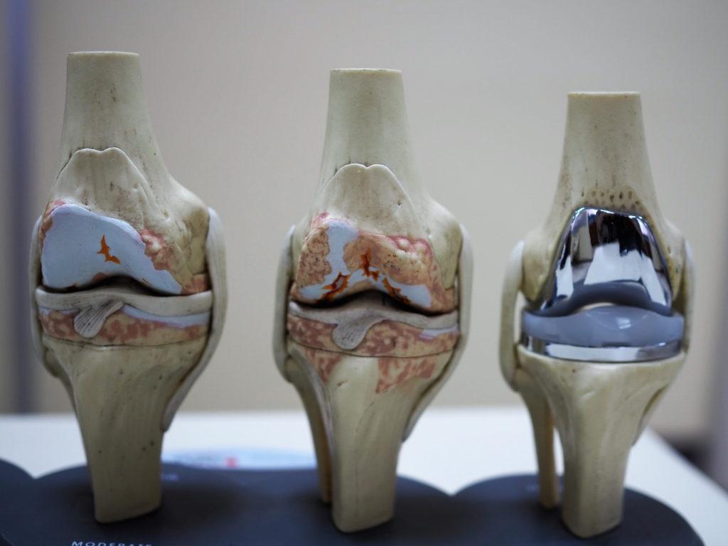 Эндопротез коленного сустава