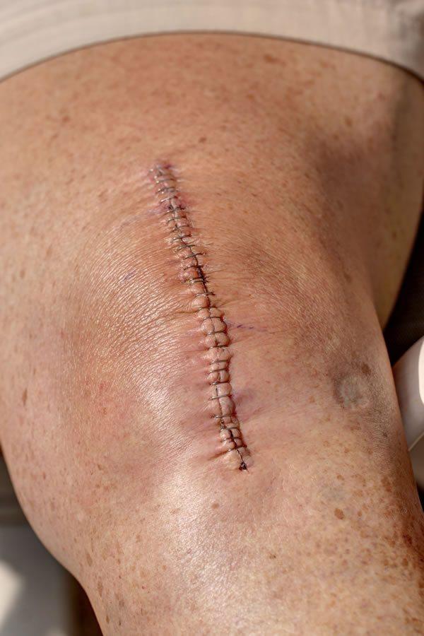 После установки эндопротеза операционная рана ушивается послойно