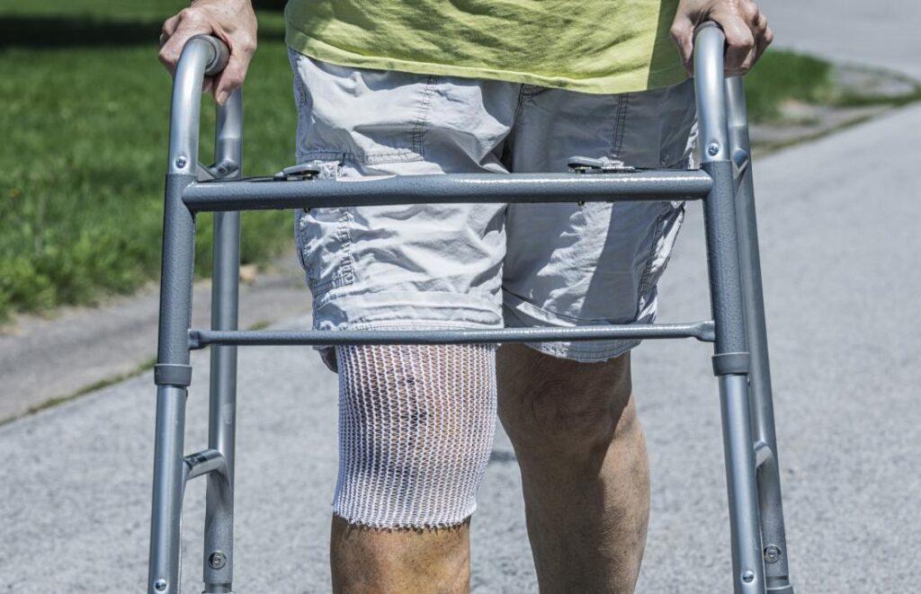 Эндопротезирование коленного сустава Киев