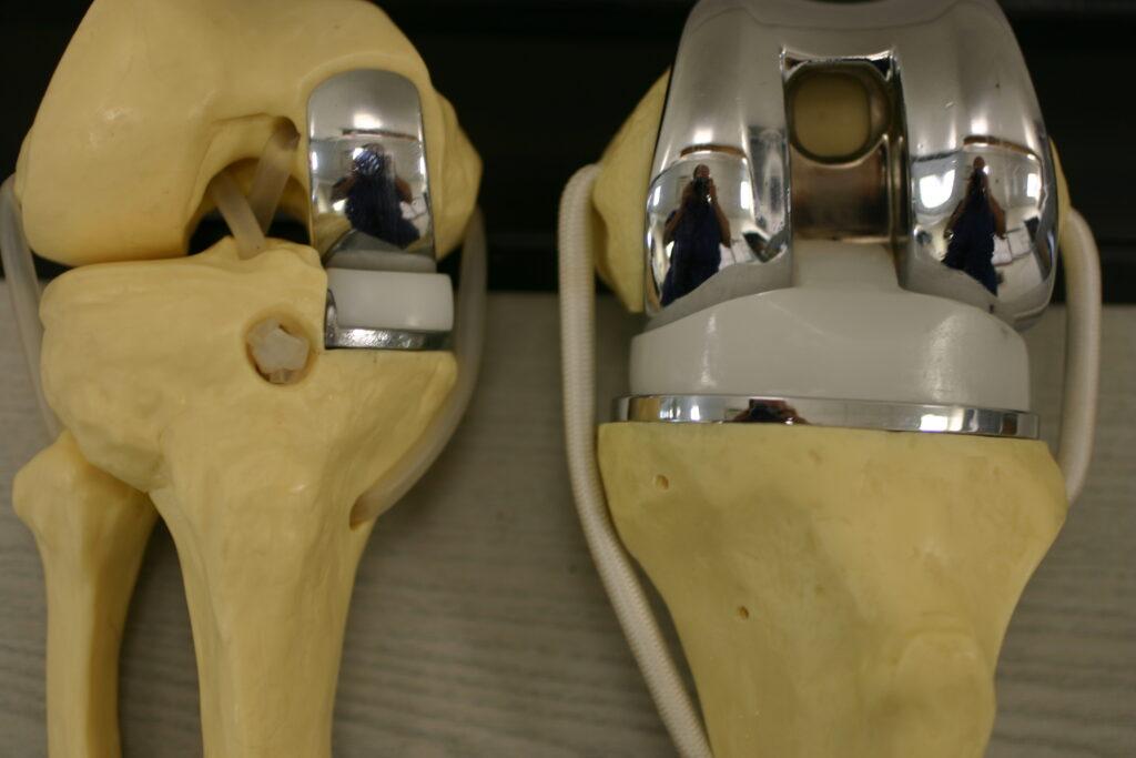 Частичное или тотальное протезирование коленного сустава