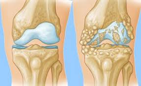артроз коленного сустава операция