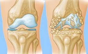 артроз коленного сустава операция/ артроз колінного суглоба операція