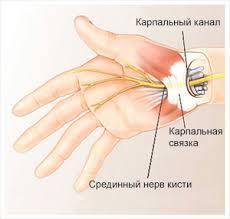 Карпальный канал операция в клинике Линько г. Киев