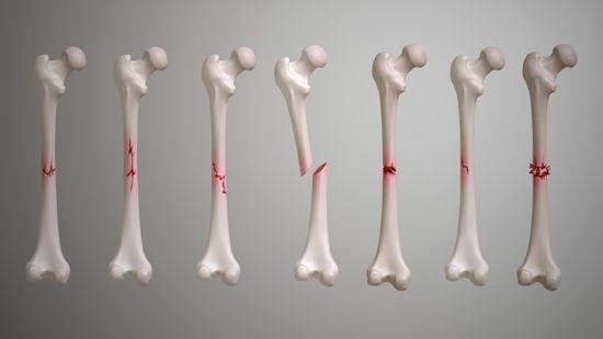Перелом кісток операція у клініці Лінько Київ
