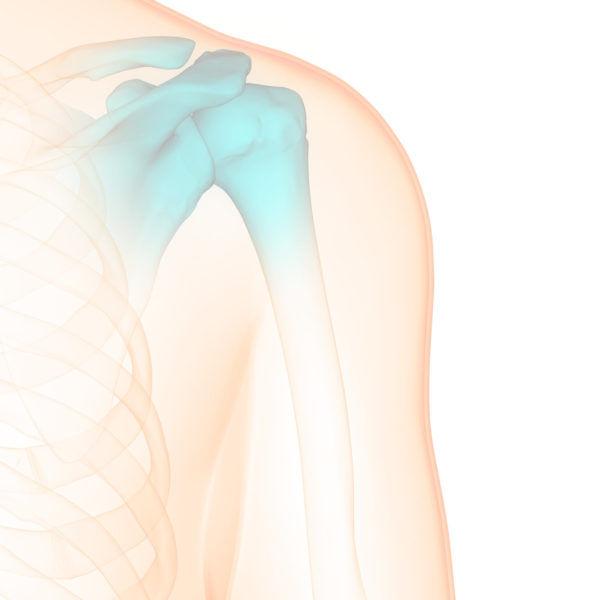 Ревизионное эндопротезирование суставов
