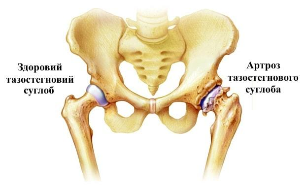 артроз кульшового (тазостегнового ) суглоба Київ операція