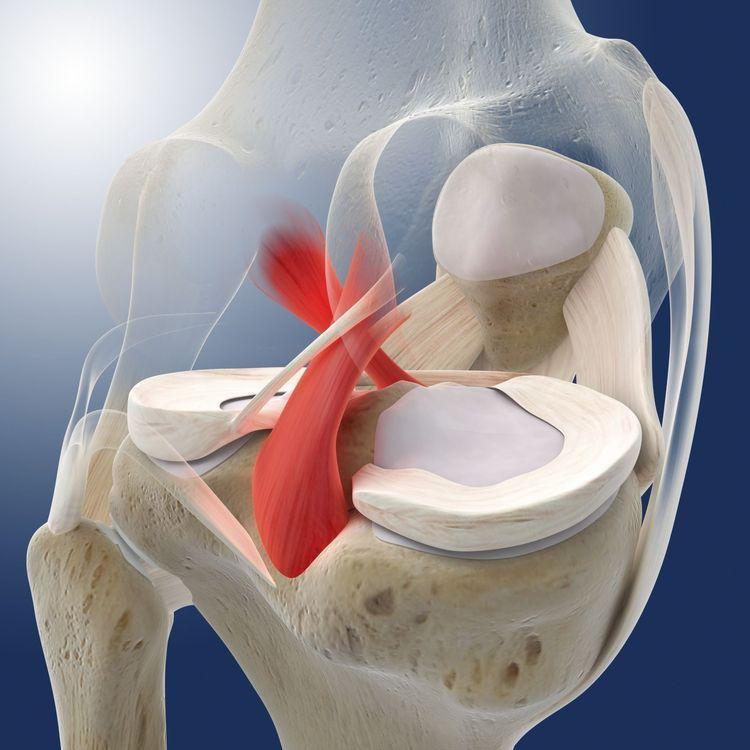 повреждение крестообразной связки операция киев