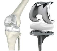 Замена коленного сустава в клинике доктора Линько Киев